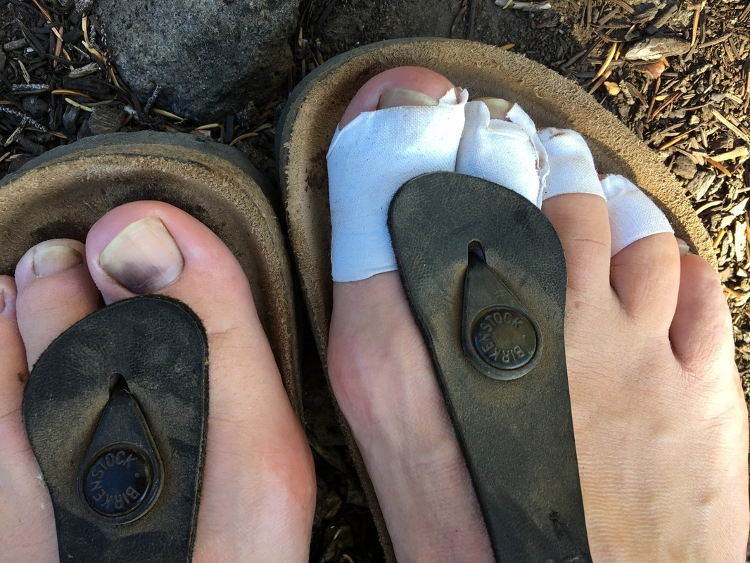 backpacker's toes and feet Pacific Crest Trail Oregon