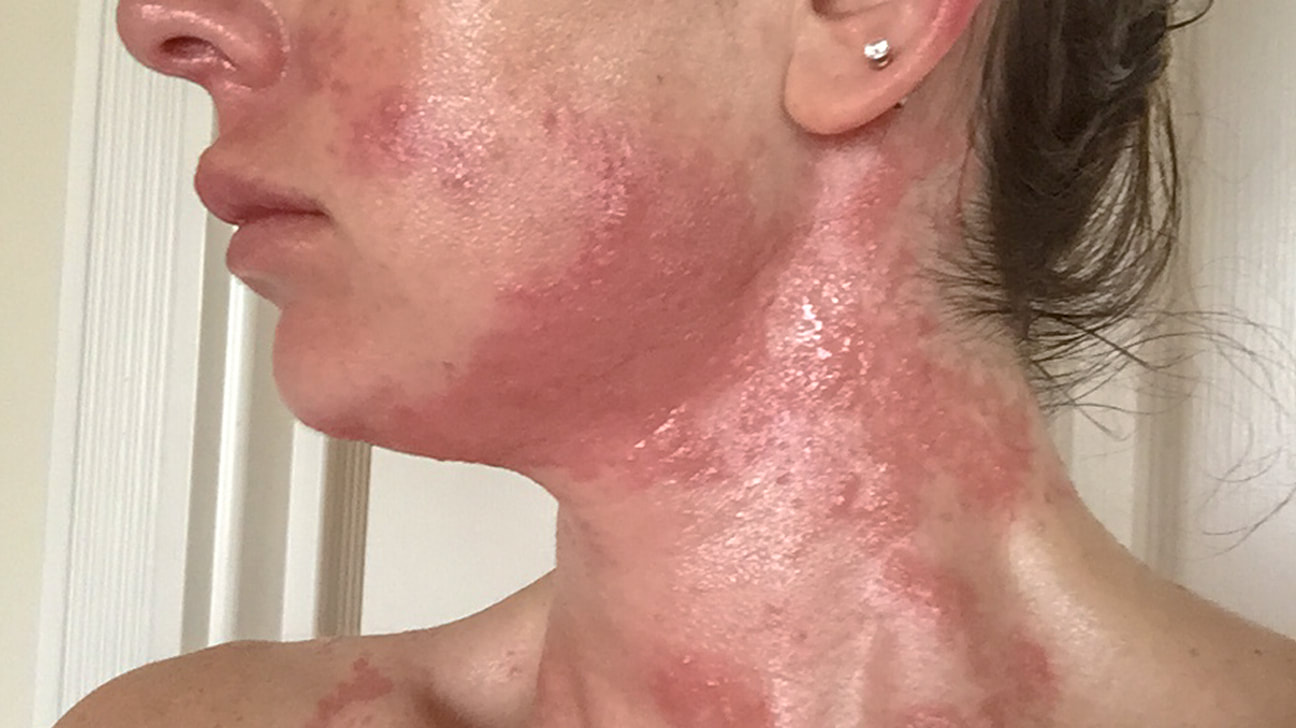 Poison oak and poison ivy rash